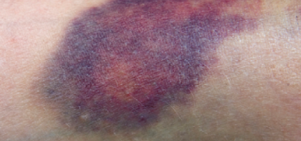 About Bruises – Bruise-MD